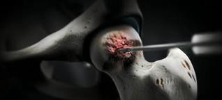 Impingement-Syndrom löst Hüftschmerzen aus