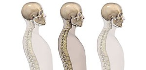 Chronische Schmerzen, die vom Kiefergelenk oder dem Biss kommen - Dr Morlok