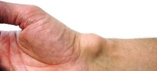 Überbein: Was steckt hinter den Hubbeln am Gelenk? - SPIEGEL ONLINE