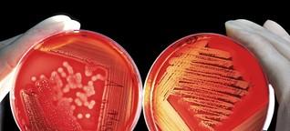 Antibiotikaresistenzen: Wettlauf gegen die Zeit