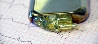 Grüne: Offene Standards für Implantate