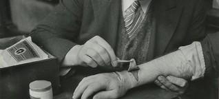 Alte Haut-Stücke entdeckt: So wurden Tattoos vor 60 Jahren entfernt