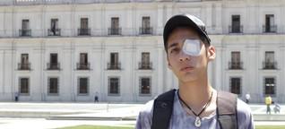 Chile: Sie haben ihr Auge verloren, aber auch ihre Angst