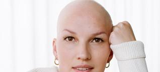 Weiblichkeit und Glatze? Ist kein Widerspruch!